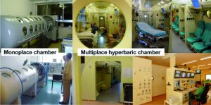 oxygénothérapie hyperbare