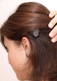 Implant de l'oreille moyenne