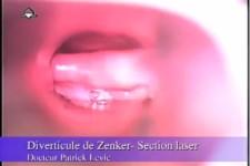 Diverticule de Zenker