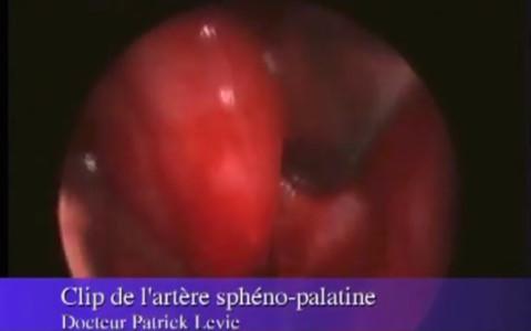 Clip de l'artère Sphéno Palatine