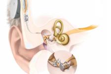 Un appareil auditif semi-implantable