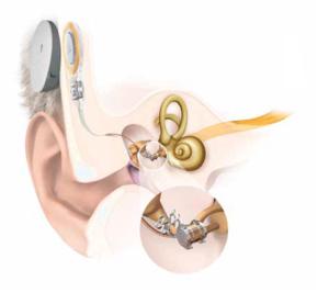Appareil auditif 2_750