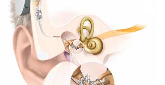 Un appareil auditif semi-implantable : une première au cabinet Messidor